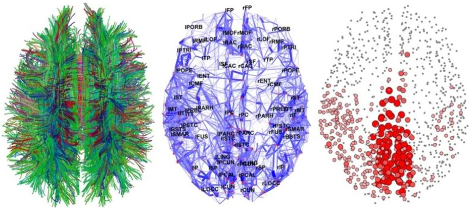 Brain connections